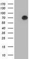 HEK293T cells were transfected with the pCMV6-ENTRY control (Left lane) or pCMV6-ENTRY AFP (Right lane) cDNA for 48 hrs and lysed. Equivalent amounts of cell lysates (5 ug per lane) were separated by SDS-PAGE and immunoblotted with anti-AFP.