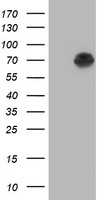 Alpha-Fetoprotein Antibody - HEK293T cells were transfected with the pCMV6-ENTRY control (Left lane) or pCMV6-ENTRY AFP (Right lane) cDNA for 48 hrs and lysed. Equivalent amounts of cell lysates (5 ug per lane) were separated by SDS-PAGE and immunoblotted with anti-AFP.