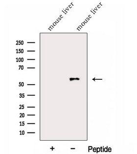 Alpha Fucosidase / FUCA1 Antibody - Western blot analysis of extracts of mouse liver tissue using FUCA1 antibody. The lane on the left was treated with blocking peptide.