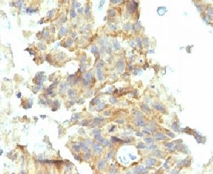 Formalin Fixed Paraffin Embedded Human Ovarian Carcinoma Stained With Alkaline Phosphatase Antibody