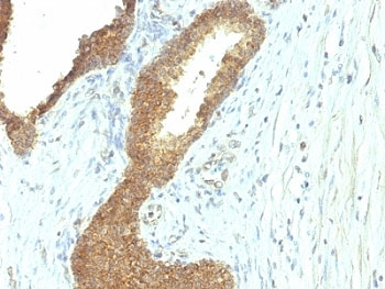 Formalin Fixed Paraffin Embedded Human Colon Carcinoma Stained With Alkaline Phosphatase Antibody