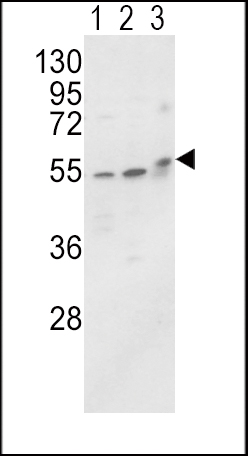 Western blot of ALPL Antibody in MCF-7(lane 1),HL-60 cell line(lane 2) and mouse brain tissue(lane 3) lysates (35 ug/lane). ALPL (arrow) was detected using the purified antibody.