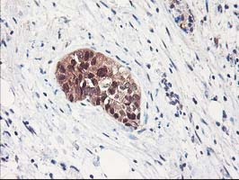 IHC of paraffin-embedded Adenocarcinoma of Human breast tissue using anti-NIF3L1 mouse monoclonal antibody.