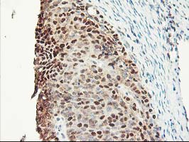 IHC of paraffin-embedded Adenocarcinoma of Human ovary tissue using anti-NIF3L1 mouse monoclonal antibody.