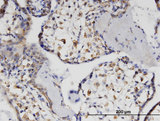 Immunoperoxidase of monoclonal antibody to HSH2D on formalin-fixed paraffin-embedded human placenta. [antibody concentration 3 ug/ml]