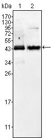 AMACR / P504S Antibody - Western blot using AMACR mouse monoclonal antibody against Jurkat (1) and LNCaP (2) cell lysate.