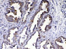 AMD / AMD1 Antibody - IHC testing of FFPE human lung cancer tissue with AMD1 antibody at 1ug/ml. Required HIER: steam section in pH6 citrate buffer for 20 min and allow to cool prior to testing.
