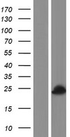 AMELY Protein - Western validation with an anti-DDK antibody * L: Control HEK293 lysate R: Over-expression lysate