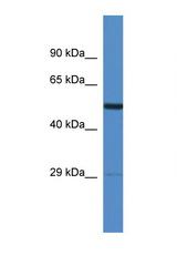 AMIGO2 antibody LS-C135358 Western blot of Rat Heart lysate. Antibody concentration 1 ug/ml.  This image was taken for the unconjugated form of this product. Other forms have not been tested.