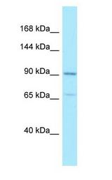 AMPD2 antibody Western Blot of HeLa.  This image was taken for the unconjugated form of this product. Other forms have not been tested.