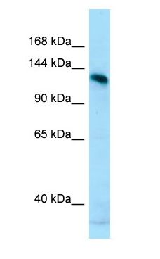 AMPD2 antibody Western Blot of MCF7.  This image was taken for the unconjugated form of this product. Other forms have not been tested.