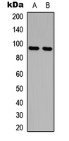 AMPD2 Antibody - Western blot analysis of AMPD2 expression in MCF7 (A); HeLa (B) whole cell lysates.