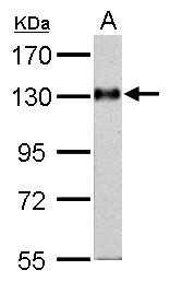 Amphiphysin antibody [N1N2], N-term detects AMPH protein by Western blot analysis. A. 50 ug mouse brain lysate/extract. 7.5 % SDS-PAGE. Amphiphysin antibody [N1N2], N-term dilution:1:1000