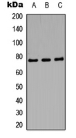 AMPH / Amphiphysin Antibody - Western blot analysis of Amphiphysin 1 expression in SHSYS5 (A); mouse brain (B); PC12 (C) whole cell lysates.