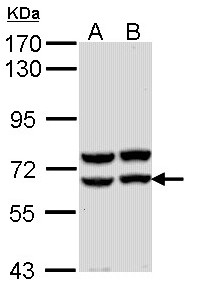 Sample (30 ug of whole cell lysate). A: Molt-4 , B: Raji. 7.5% SDS PAGE. AMY2A / Pancreatic Amylase antibody diluted at 1:1000.