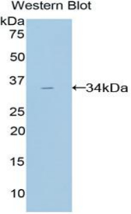 Western blot of recombinant AMY2A / Pancreatic Amylase.  This image was taken for the unconjugated form of this product. Other forms have not been tested.