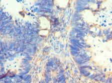 AMY2A / Pancreatic Amylase Antibody - Immunohistochemistry of paraffin-embedded human ovarian cancer using antibody at 1:100 dilution.