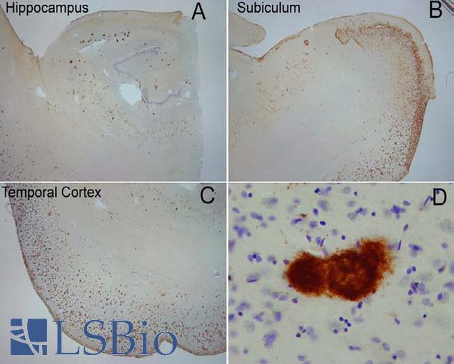 Amyloid Fibrils Antibody - Extensive OC labeling was observed in the hippocampus (A), subiculum (B) and frontal cortex (C) in Alzheimer disease. A higher magnification photograph illustrates that OC positive deposits were dense and consisted of fine fibrillar material (D).  This image was taken for the unconjugated form of this product. Other forms have not been tested.