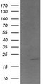 HEK293T cells were transfected with the pCMV6-ENTRY control (Left lane) or pCMV6-ENTRY ANAPC11 (Right lane) cDNA for 48 hrs and lysed. Equivalent amounts of cell lysates (5 ug per lane) were separated by SDS-PAGE and immunoblotted with anti-ANAPC11.
