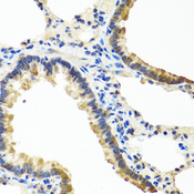 ANGPT1 / Angiopoietin-1 Antibody - Immunohistochemistry of paraffin-embedded rat lung tissue.