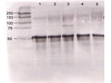 Rabbit anti-ANG1 was used at a 1:500 dilution to detect mouse Ang-1 by western blot against supernatants of mouse angiopoietin-expressing endothelial cells. Lane 1 - wt endothelial cells. Lane 2 - mouse Ang-1 (clone 1-8) expressing cells. Lane 3 - mouse Ang-1 (clone 1-15) expressing cells. Lane 4 - mouse Ang-2 (clone 2-9) expressing cells. Approximately 20 µg of each lysate was used for 10% SDS-PAGE. Immunoprecipitation preceded the reaction with primary antibody at room temperature for 1 h. After subsequent washing, a 1:5,000 dilution of HRP conjugated Gt-a-Rabbit IgG preceded color development.