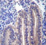 ANGPTL7 / CDT6 Antibody - ANGPTL7 Antibody immunohistochemistry of formalin-fixed and paraffin-embedded human uterus tissue followed by peroxidase-conjugated secondary antibody and DAB staining.