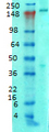 Western blot analysis of Ankyrin-B in rat brain membrane tissues, using a 1:1000 dilution of ANK2 / Ankyrin B antibody.