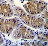 ANKEF1 / ANKRD5 Antibody - ANKRD5 Antibody immunohistochemistry of formalin-fixed and paraffin-embedded human stomach tissue followed by peroxidase-conjugated secondary antibody and DAB staining.