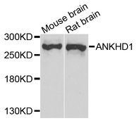 ANKHD1 Antibody - Western blot analysis of extract of various cells.