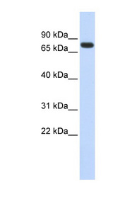 ANKRD13B Antibody - ANKRD13B antibody Western blot of Fetal Heart lysate. This image was taken for the unconjugated form of this product. Other forms have not been tested.