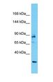 Western blot of ANKRD17 Antibody with human 293T Whole Cell lysate.  This image was taken for the unconjugated form of this product. Other forms have not been tested.