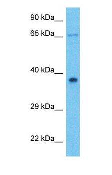 ANKRD2 Antibody - Western blot of ANKRD2 Antibody with human Fetal Liver lysate.  This image was taken for the unconjugated form of this product. Other forms have not been tested.