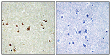 Immunohistochemistry analysis of paraffin-embedded human brain, using ANKRD26 Antibody. The picture on the right is blocked with the synthesized peptide.