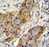 ANKRD39 Antibody - ANR39 Antibody immunohistochemistry of formalin-fixed and paraffin-embedded human breast carcinoma followed by peroxidase-conjugated secondary antibody and DAB staining.