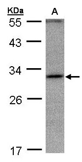 ANKRD45 Antibody - Sample (30 ug whole cell lysate). A: Hep G2 . 12% SDS PAGE. ANKRD45 antibody diluted at 1:1000