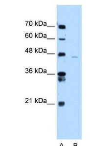 ANKRD65 Antibody - ANKRD65 antibody Western Blot of Jurkat cell lysate.  This image was taken for the unconjugated form of this product. Other forms have not been tested.