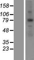 ANKZF1 Protein - Western validation with an anti-DDK antibody * L: Control HEK293 lysate R: Over-expression lysate