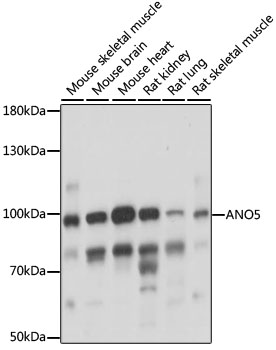 ANO5 / Anoctamin 5 Antibody - Western blot analysis of extracts of various cell lines, using ANO5 antibody at 1:1000 dilution. The secondary antibody used was an HRP Goat Anti-Rabbit IgG (H+L) at 1:10000 dilution. Lysates were loaded 25ug per lane and 3% nonfat dry milk in TBST was used for blocking. An ECL Kit was used for detection and the exposure time was 5s.