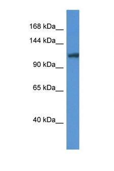ANO6 Antibody - ANO6 antibody Western blot of Mouse Liver lysate. Antibody concentration 1 ug/ml. This image was taken for the unconjugated form of this product. Other forms have not been tested.