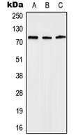 Western blot analysis of Anosmin expression in Jurkat (A); mouse heart (B); rat heart (C) whole cell lysates.