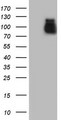 HEK293T cells were transfected with the pCMV6-ENTRY control (Left lane) or pCMV6-ENTRY ACE2 (Right lane) cDNA for 48 hrs and lysed. Equivalent amounts of cell lysates (5 ug per lane) were separated by SDS-PAGE and immunoblotted with anti-ACE2.