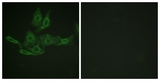Immunofluorescence of HepG2 cells, using BCL-2 (Ab-69) Antibody. The picture on the right is treated with the synthesized peptide.