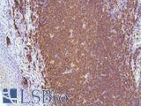 Immunohistochemistry of Human Tonsil stained with anti-CD20 antibody