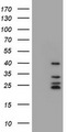 HEK293T cells were transfected with the pCMV6-ENTRY control (Left lane) or pCMV6-ENTRY MS4A1 (Right lane) cDNA for 48 hrs and lysed. Equivalent amounts of cell lysates (5 ug per lane) were separated by SDS-PAGE and immunoblotted with anti-MS4A1.