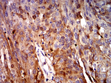 Immunohistochemical analysis of paraffin-embedded ovarian cancer tissues using C3C mouse mAb with DAB staining.
