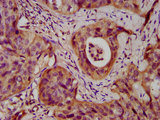 Immunohistochemistry image at a dilution of 1:400 and staining in paraffin-embedded human cervical cancer performed on a Leica BondTM system. After dewaxing and hydration, antigen retrieval was mediated by high pressure in a citrate buffer (pH 6.0) . Section was blocked with 10% normal goat serum 30min at RT. Then primary antibody (1% BSA) was incubated at 4 °C overnight. The primary is detected by a biotinylated secondary antibody and visualized using an HRP conjugated SP system.