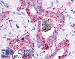 Anti-EGFR antibody IHC of human Lung, Non-Small Cell Carcinoma. Immunohistochemistry of formalin-fixed, paraffin-embedded tissue after heat-induced antigen retrieval.