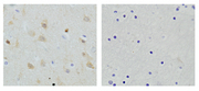 Immunohistochemistry of human brain tissue slide (Paraffin embedded) using Rabbit Anti-NSE Polyclonal Antibody (Left). And Purified Rabbit IgG (Whole molecule) Control (Right).