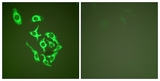 Immunofluorescence of HepG2 cells, using HSP60 Antibody. The picture on the right is treated with the synthesized peptide.