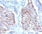 Formalin-fixed, paraffin-embedded human lung carcinoma stained with HSP60 antibody (HSPD1/780).  This image was taken for the unmodified form of this product. Other forms have not been tested.